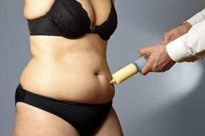 Opting for Lipo: What Are the Most Common Liposuction Areas?